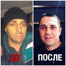 Игорь после реабилитации