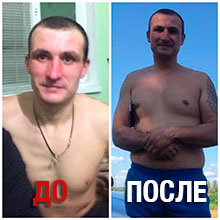 до и после реабилитации